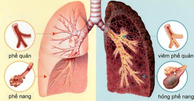 Một số huyệt vị chúng ta có thể xoa bấm giúp cải thiện phổi
